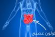 صورة القولون العصبي اعراضه وعلاجه , تعرف علي اهم اعراض القولون وعلاجه