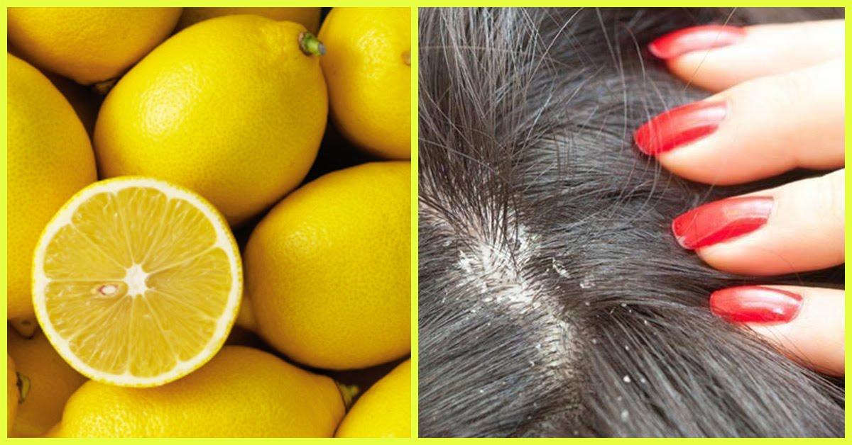 صورة علاج قشرة الراس بالليمون , كيفيه استخدام الليمون للقضاء على القشره 567 1