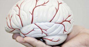 صورة اعراض الارتجاج فى المخ , عرض الارتجاج فى المخ