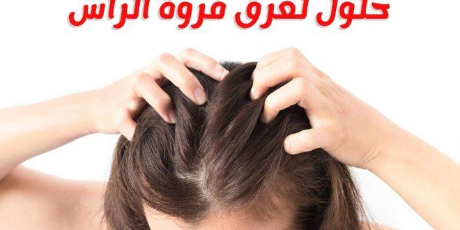 صور اسباب تعرق فروة الراس , هل تعاني من عرق في خصيلات شعرك