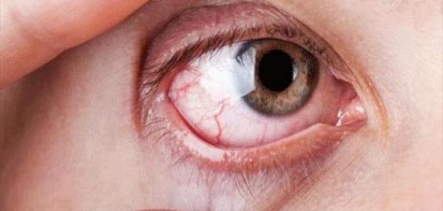 صورة جفاف العين وعلاجه , مشاكل العين مع تقدم العمر 2319