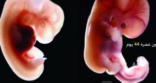 صورة شكل الجنين في الشهر الثاني من الحمل , انا في الشهر الثاني كيف يبدو جنيني في هذا الشهر