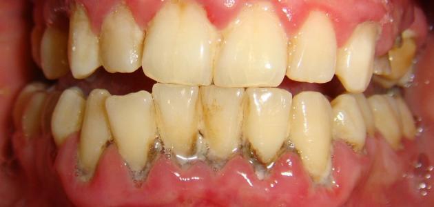 صور كيفية علاج التهاب اللثة , اسناني تنزف دم ولا استطيع ان اكل عليها