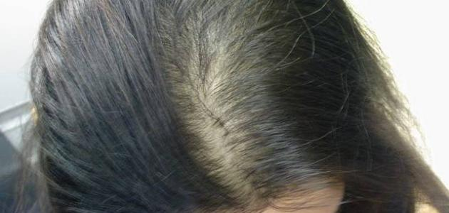 صور علاج الشعر الخفيف , تخلصى من الشعر الخفيف بسهولة