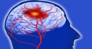 صور هل يمكن الشفاء من نزيف المخ , اعرف علاج اعراض نزيف المخ
