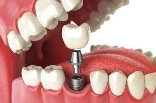 صورة طريقة زراعة الاسنان , تعريف كيفية زراعة الاسنان