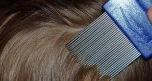 صورة علاج قمل الشعر بطريقه سهله , وصفات منزليه للتخلص من القمل