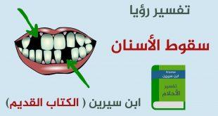 صورة تفسير الاحلام رؤية الاسنان تسقط , معني الاسنان في المنام