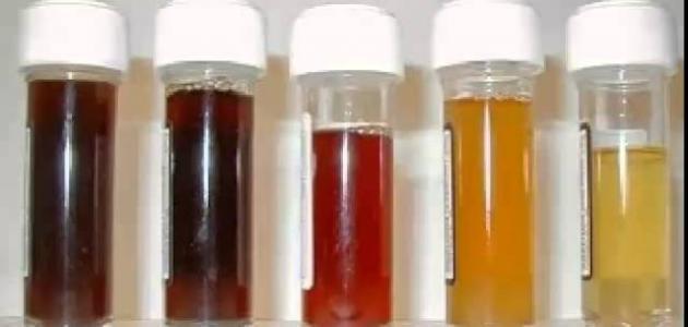 صورة اسباب بول الدم , اسباب و عوامل خطر دم البول