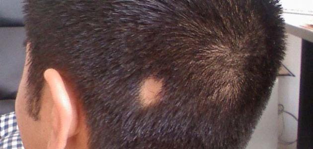 صورة علاج ثعلبة الشعر , معالجه الثعالبة للشعر هنا