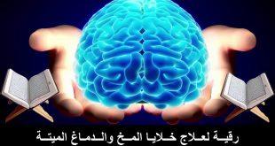 صورة علاج نزيف المخ بالقران , معجزه قرانيه لوقف نزيف المخ