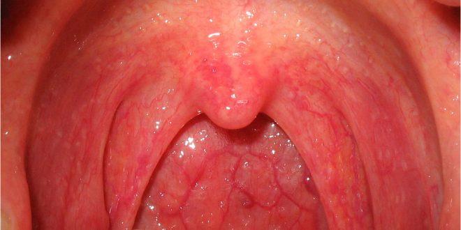 صورة مضاد حيوي طبيعي,صور التهاب الحلق