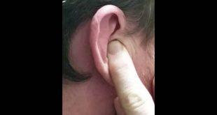 صورة انسداد طبله الاذن,اضرار سدادات الاذن للنوم